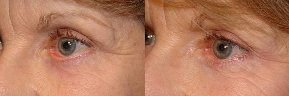 Canthoplasty Surgery – Part 2 – Why is a Canthoplasty ...