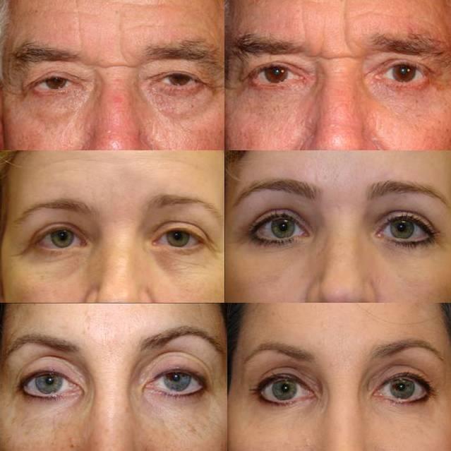 ptosis repair surgery ii  u00ab cosmetic eyelid surgery in