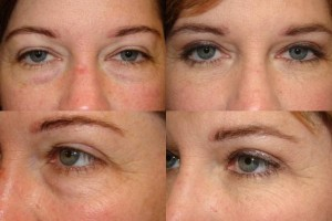 Natural Removal of Lower Eyelid Bags - Cosmetic Eyelid ... Ectropion After Lower Blepharoplasty