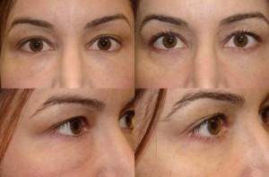Swelling After Lower Eyelid Fillers Juvederm Restylane
