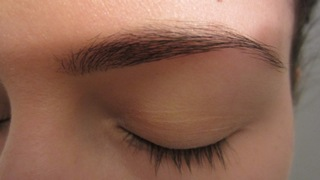 eyebrow-lift-dr.-massry-beverly-hills-ca