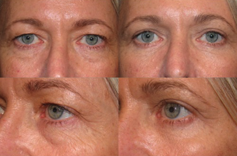 Customized Eyelid Rejuvenation - Upper and Lower Blepharoplasty