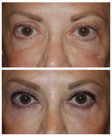 Festoons removal, lower blepharoplasty, and fillers
