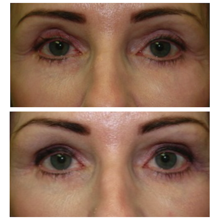 Restylane Filler in upper eyelids