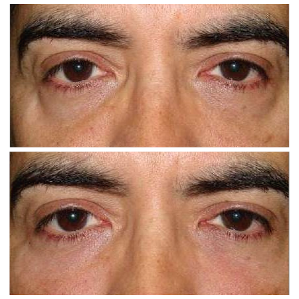Restylane Fillers under the eyes