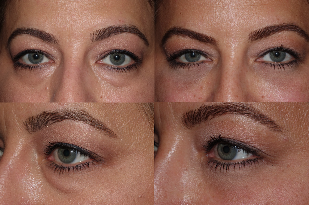Lower Blepharoplasty - Under eye bag rejuvenation surgery