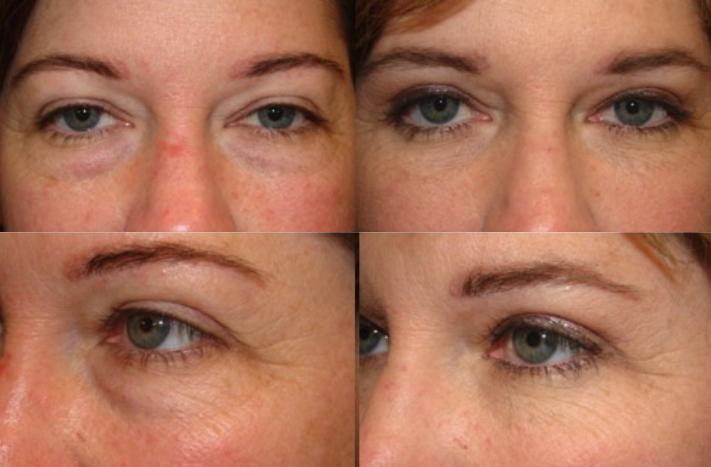Lower Blepharoplasty - Under eye bag surgery