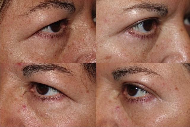 Upper Blepharoplasty - Eyelid Rejuvenation Surgery