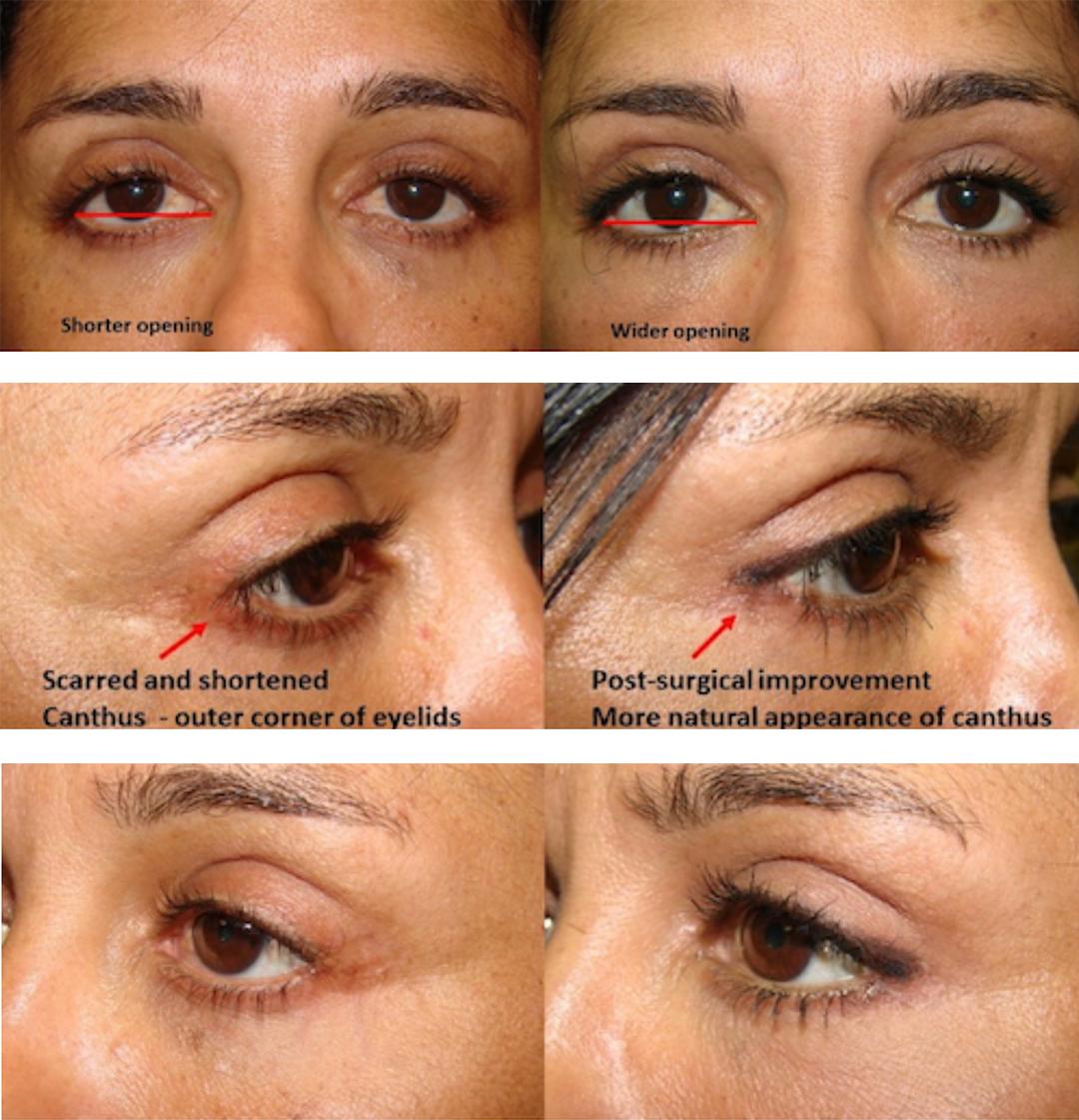 Canthoplasty With Horizontal Eyelid Lengthening