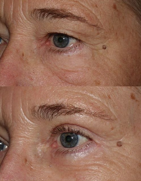 Upper and Lower Blepharoplasty with outer brow lift