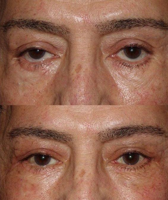 Post-Blepharoplasty Lower Eyelid Retraction Repair